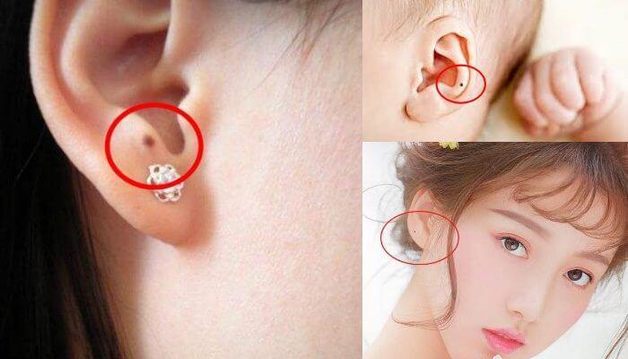 Nốt ruồi ở tai là điềm tốt hay xấu? Ý nghĩ các vị trí nốt ruồi ở tai?