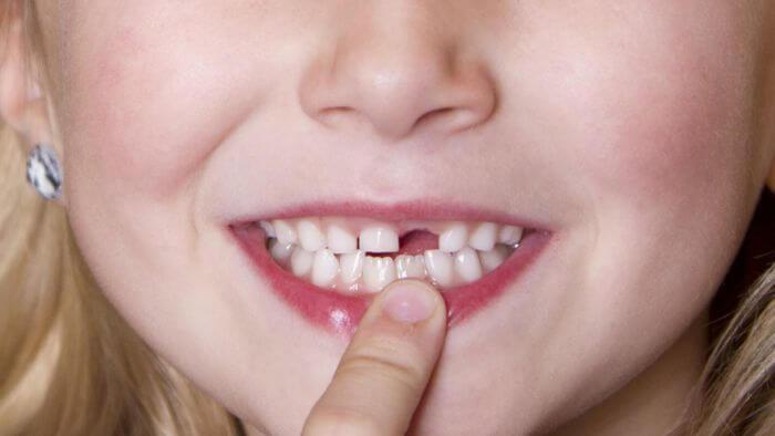 Nằm mơ thấy rụng răng là điềm gì? Đánh lô đề số mấy tỷ lệ trúng cao?