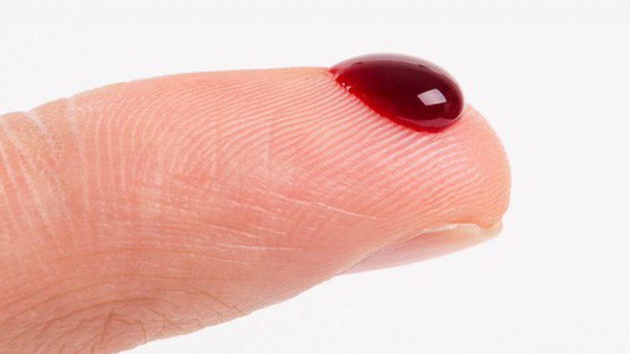 Mơ thấy máu đánh con gì? Là điềm báo LÀNH hay DỮ?